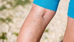 Here is the amazing and easy to prepare recipe for varicose veins!
