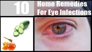 Easy and effective Home Remedies for Eye Infection!