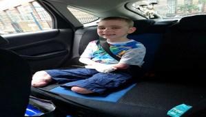 Boy looses both limbs due to meningitis. Shocking but true!