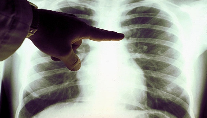lung-cancer-has-gender-bias-netmarkers