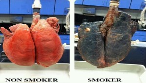 This is how your body is affected by cigarette smoking!