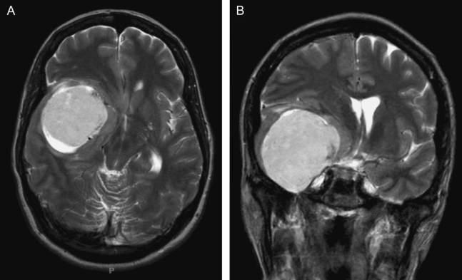 Resultado de imagen de Meningiomas