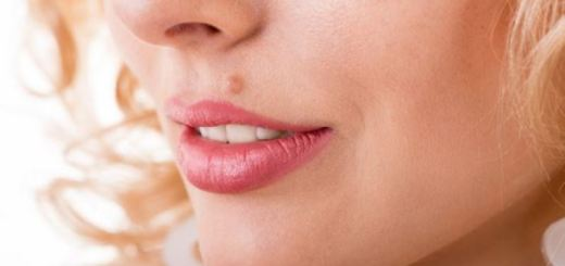 how to get rid of moles_New_Love_Times