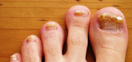 home remedies for toe fungus_New_Love_Times
