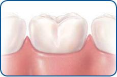 trans_dental-visits01