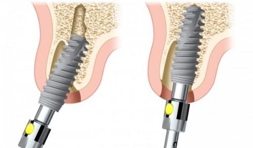 cấy ghép răng Implant thất bại