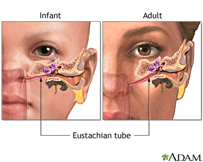 Either squishy noises in the ear comes from water/infection in the ear canal, or fluid in the eustahian tube 3