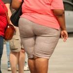 foto obeso