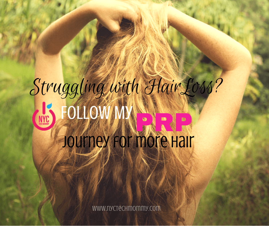 Struggling with Hair Loss? Follow My PRP Journey for More Hair