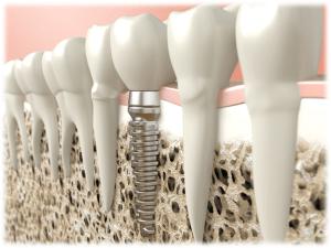 Dental Implants Edited