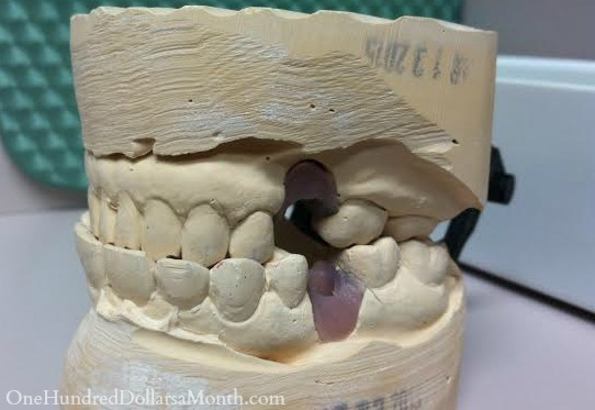 cast of teeth
