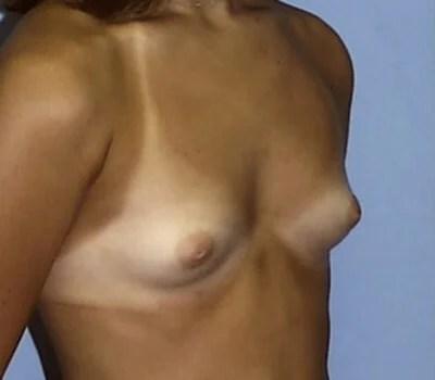 purple boobs