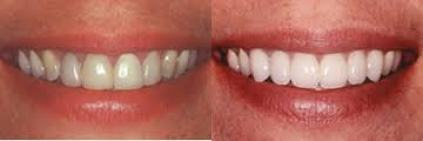Cosmetic Dentist Los Angeles Before and After