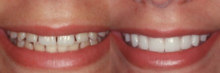 Veneers Los Angeles - Before and After