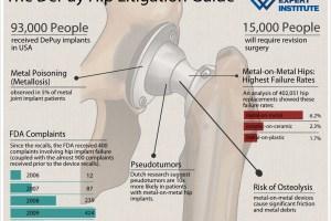 DePuy-Hip-InfoGraphic