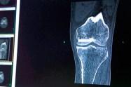 4540d_99793kirkland121815_knee-replacement