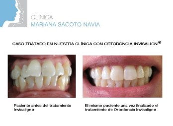 antes y despues Dalia