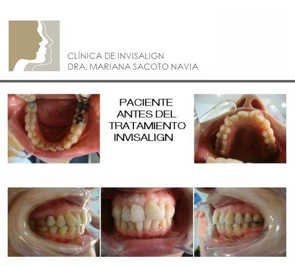 casos tratados Doctora Mariana Sacoto Navia INICIO