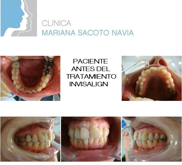 Clínica Mariana Sacoto Navia Ortodoncia Invisible Barcelona Expertos en Invisalign