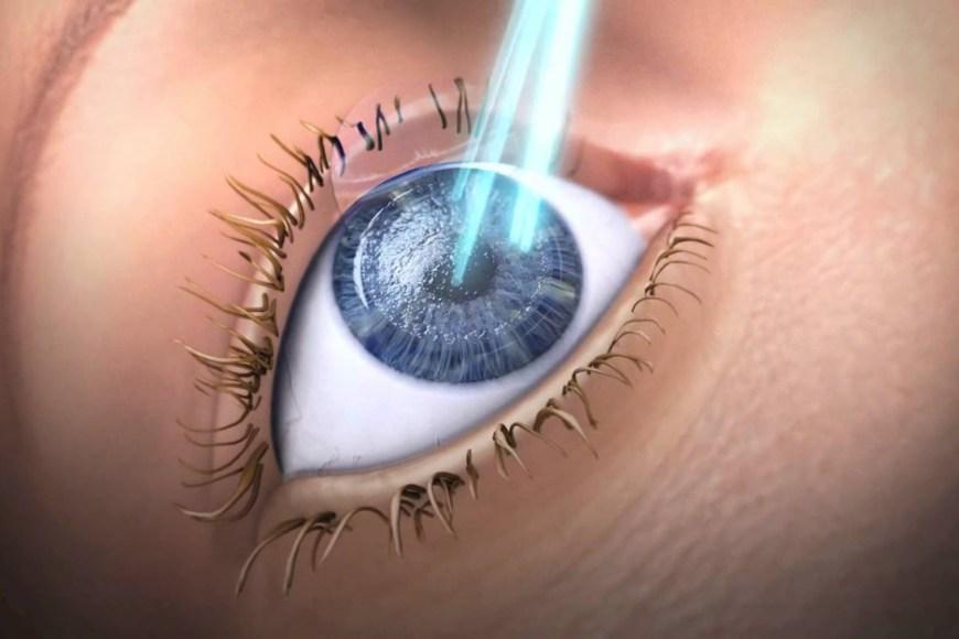 chirurgia-refrattiva-roma-didomenico-laser-ad-eccimeri_1000x625