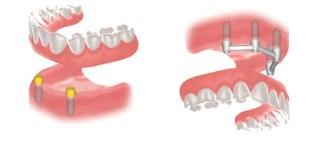 prothese-dentaire-amovible-implant(1)