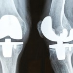 Knee Replacement Surgery & Cost in India