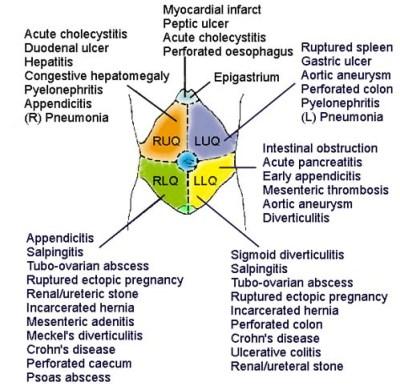 colecistita acuta litiazica regim alimentar