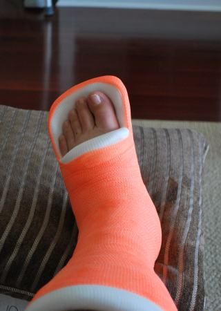 Broken Leg (January 2009)