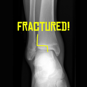 The fracture plane of this triplane fracture