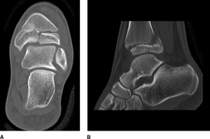 Standard CT views in a triplane fracture