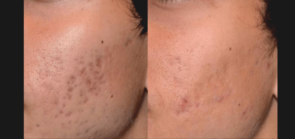Before & After 2 Focus Treatments | Courtesy of R. Saluja, MD