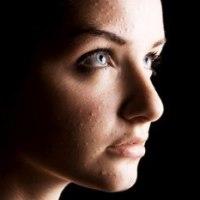 3 Recetas con Tomillo para eliminar el acné