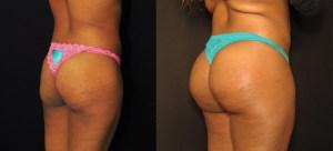 implants fessiers et injection de graisse