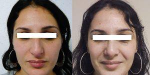 rhinoplastie-plasticiens-paris-3 face