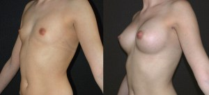 augmentation-mammaire-12