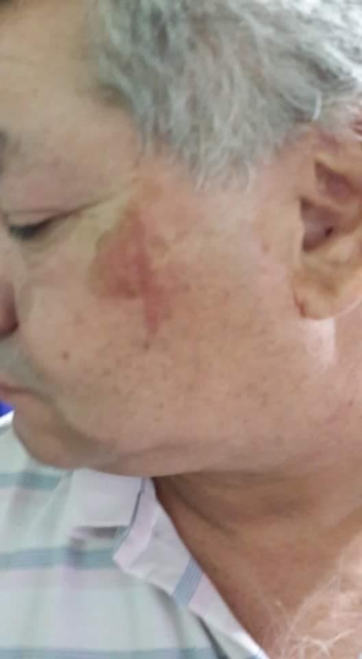 Así quedó el rostro del padre de Gómez, dirigente gremial detenido.