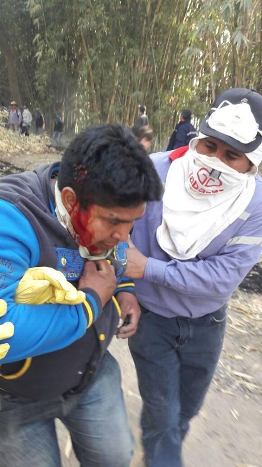 Obrero herido por un proyectil en la cabeza.