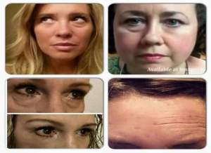 Instantly Ageless – A powerful anti aging cream