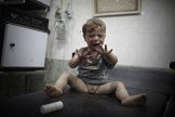Niño herido en Aleppo, Siria. 2do lugar individual. Foto: Sebastiano Tomada / WPP