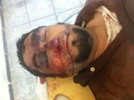 El supuesto cadáver de El Chayo. Foto: Especial.