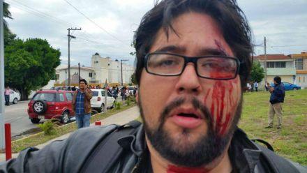 El reportero Iván Sánchez de MVS fue golpeado cuando consignaba las agresiones de los agentes. Foto: Tomada de Facebook