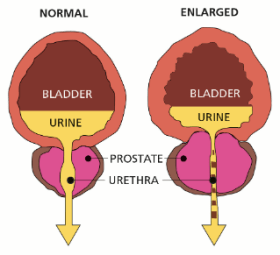 Enlarged Prostate icd 10