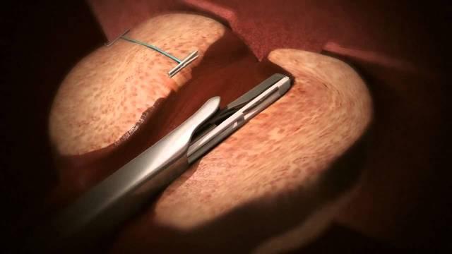 Close up of procedure