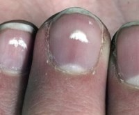 White nail spots are another very frequent sign of nail psoriasis