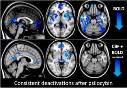 psilocybin brain scan2