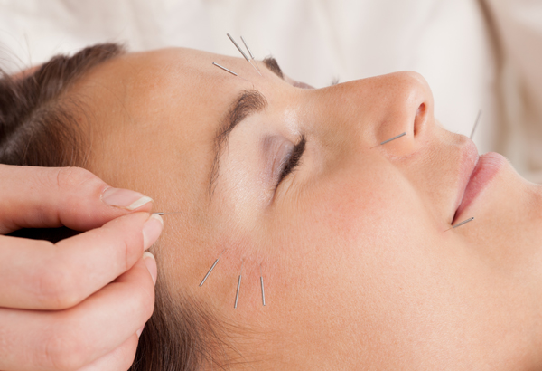 AcupunctureSlimming