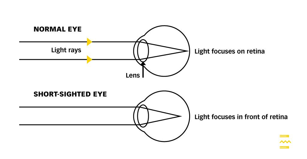 Normal vs Myopic Eye PULSE TCM CLINIC