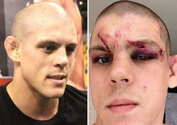 Joe-Lauzon-630x443