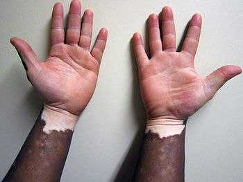 English: Vitiligo
