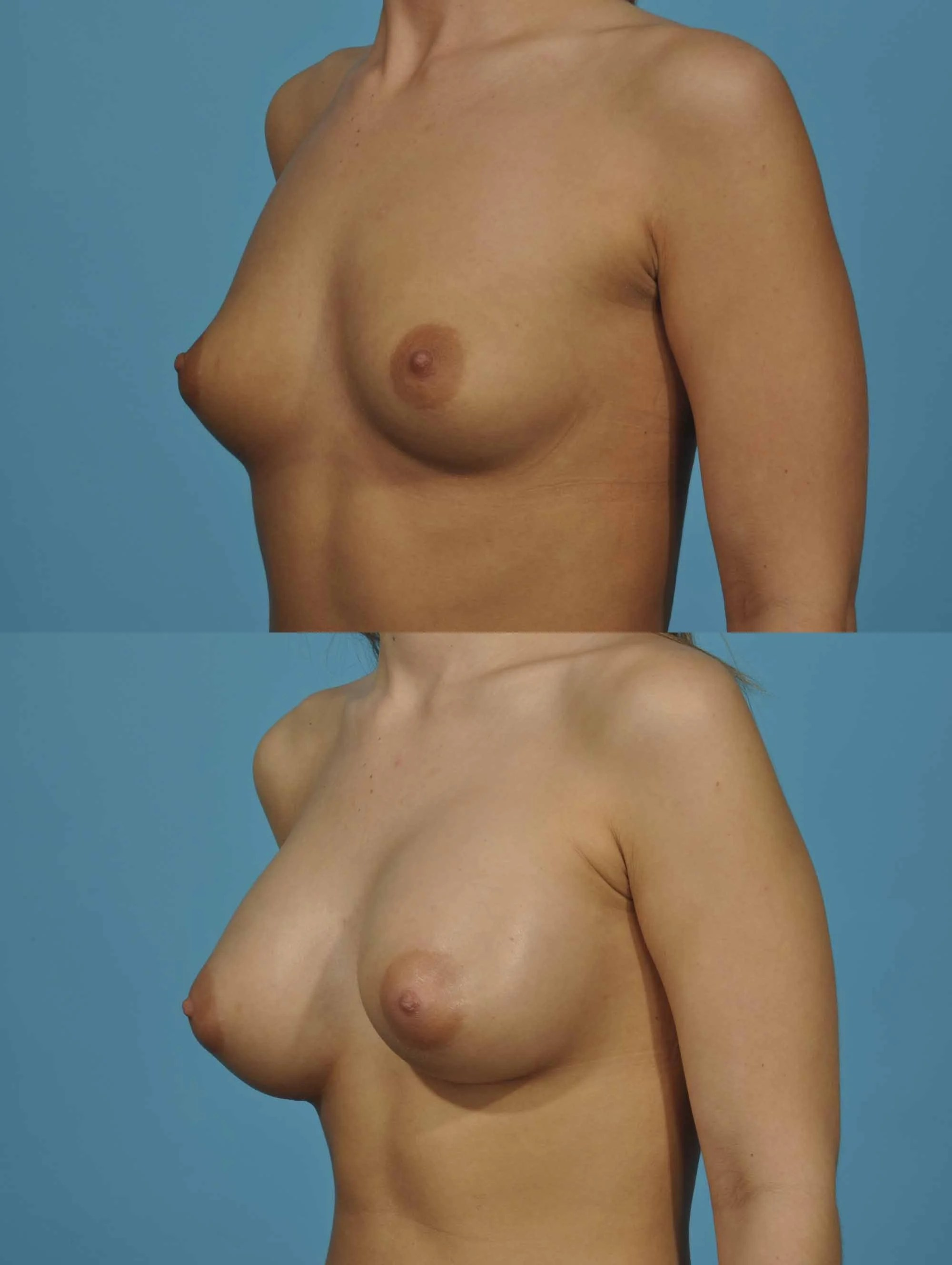 large breast augmentation before and after